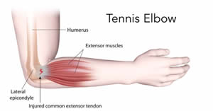 cause of tennis elbow